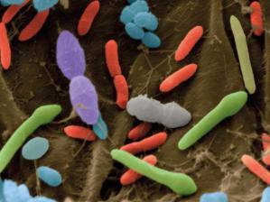 La flora bacteriana del ser humano ha cambiado drásticamente en los últimos cien años.